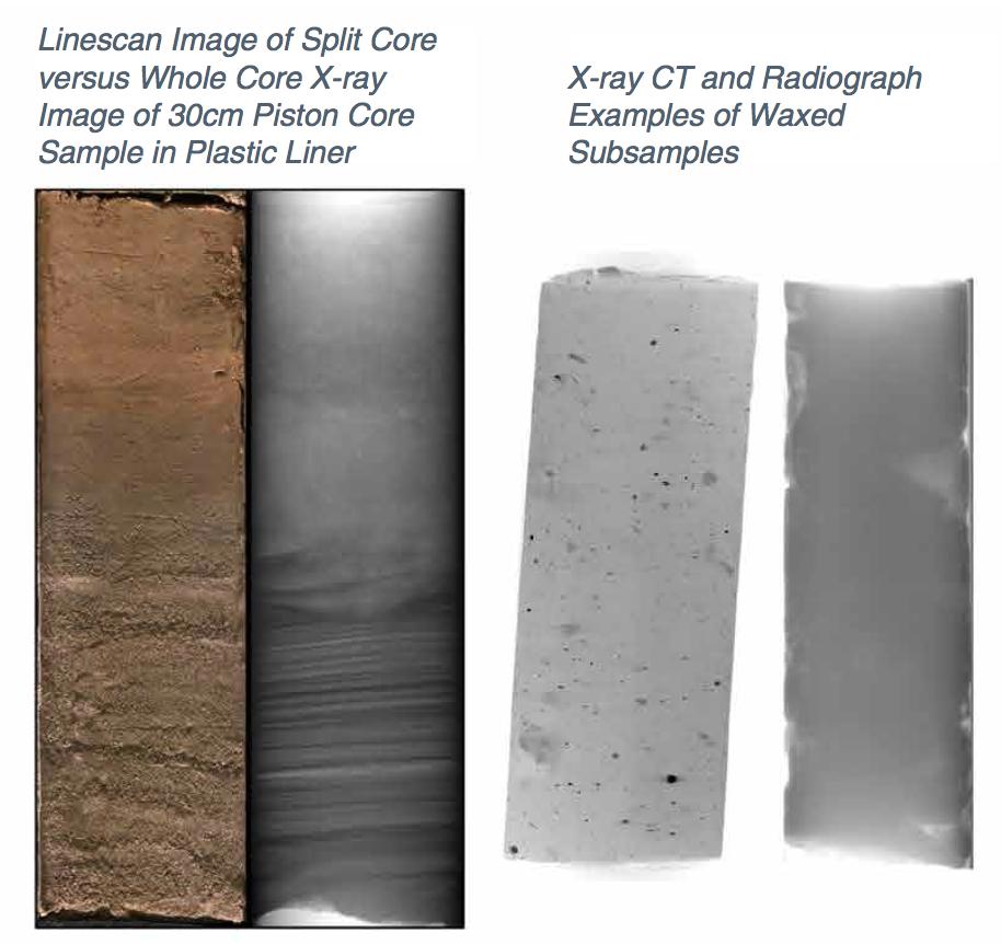 X-ray Radiography & CT slice