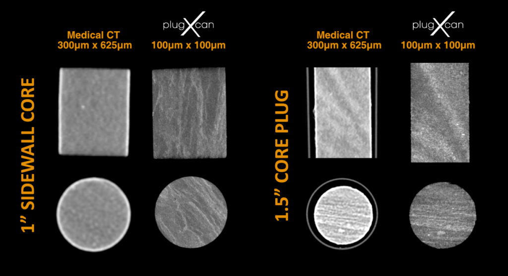 Medical CT data compared with PlugXcan data